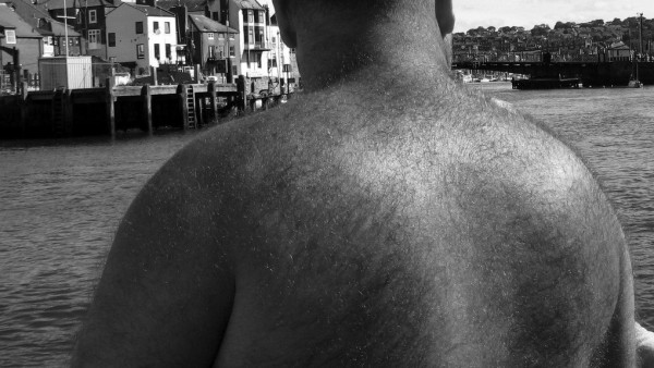 Hairy Back but going bald